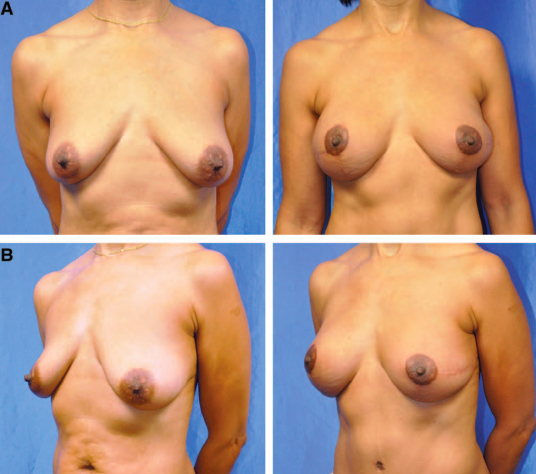 A, B foto pre Mastectomia bialterale e ricostruzione con Lembo DIEP bialterale  (a destra il post a 3 mesi)