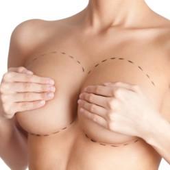 Ricostruzione della mammella post-mastectomia